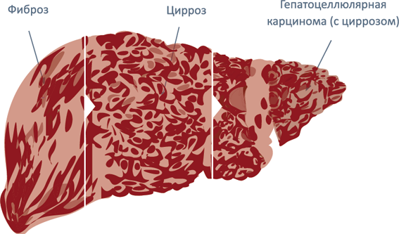 Что такое гепатит С?   HepatitisCgids